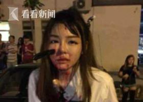 女孩脸上被插了一把刀,血流一身还能淡定自拍
